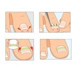 пластини за корекция на врастнали и деформирани нокти